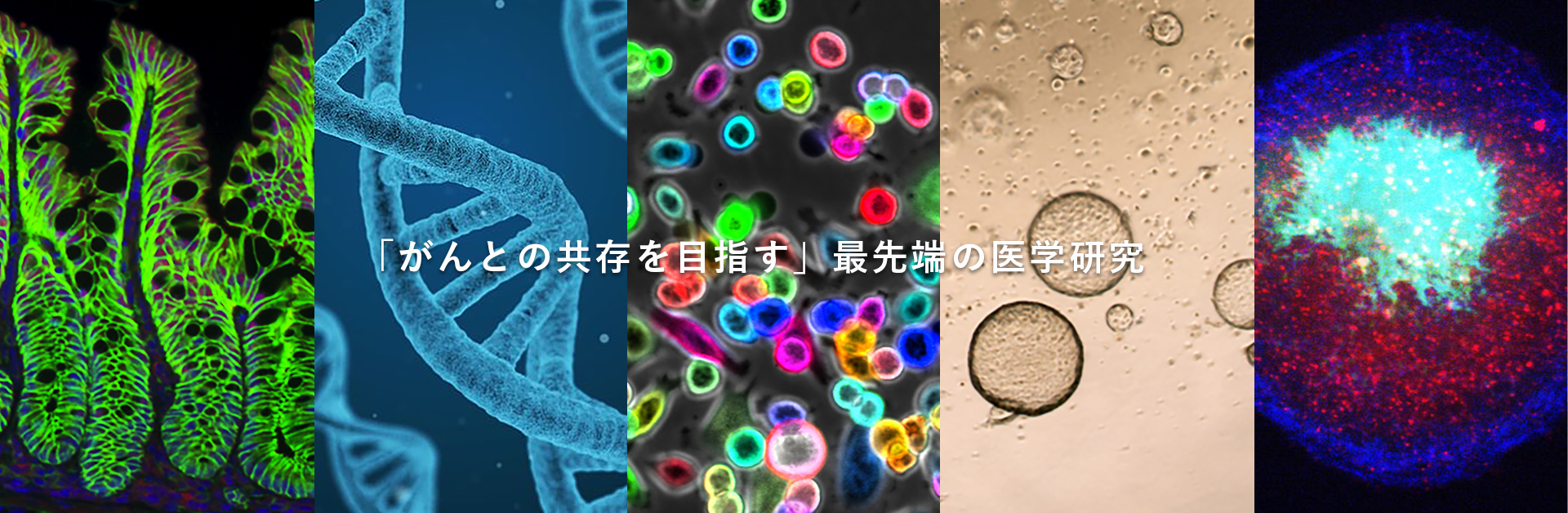 「がんとの共存を目指す」最先端の医学研究